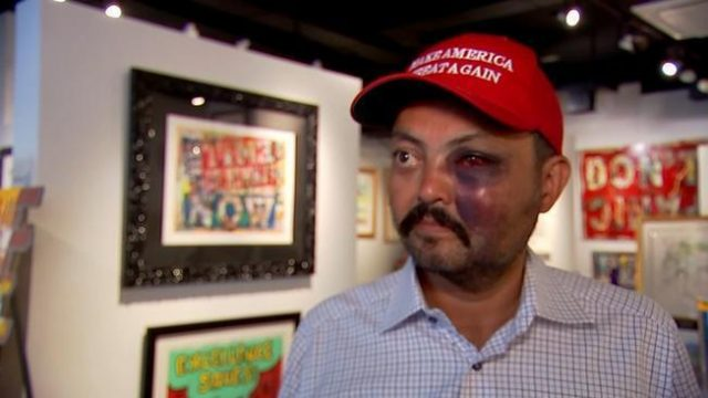 nyc-man-bashed-in-the-face,-beaten-for-wearing-maga-hat