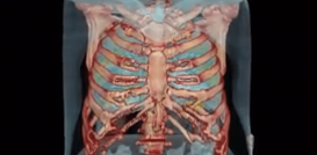 lung-damage-seen-in-recently-asymptomatic-coronavirus-patient