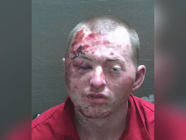 sheriff:-man-loses-fight-with-deputies,-k-9-during-attempted-burglary-arrest