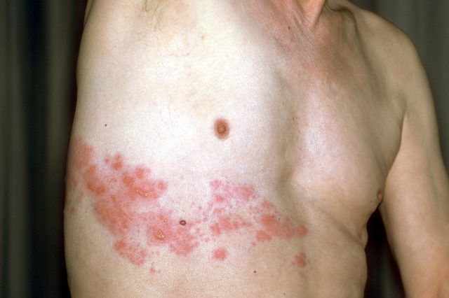 herpes-infection-possibly-linked-to-covid-19-vaccine,-study-says